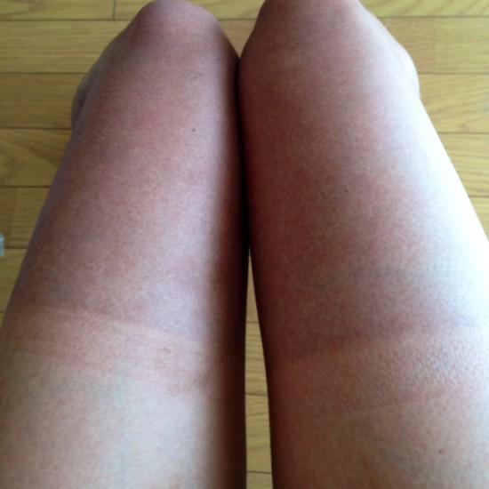レーパンを履いてロードバイクにのった後の日焼け後の画像